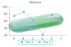 buy vermox 100mg