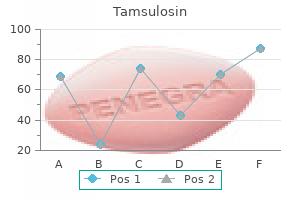 buy tamsulosin 0.4 mg with mastercard