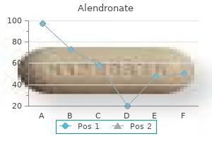 generic alendronate 70mg mastercard