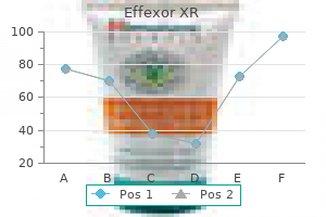 purchase effexor xr 75 mg with visa