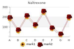 buy cheap naltrexone 50 mg online